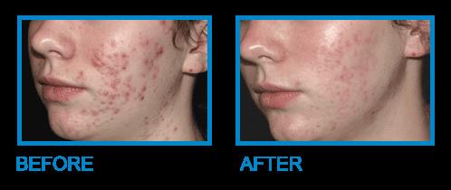 Acne Treatment Dublin