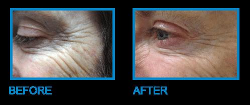 Smile Line Treatments Dublin