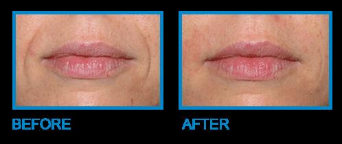 botox injections Dublin - Amara