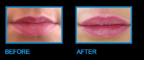 Lip Fillers Dublin - Amara Medical Skincare