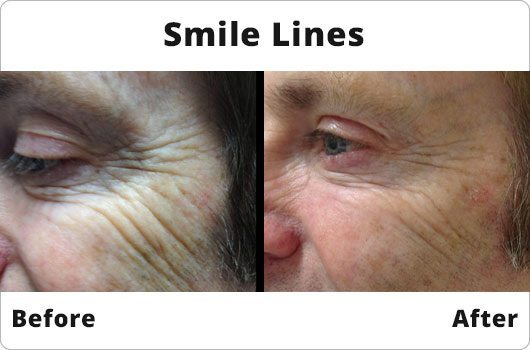 Before and After -  Smile Lines