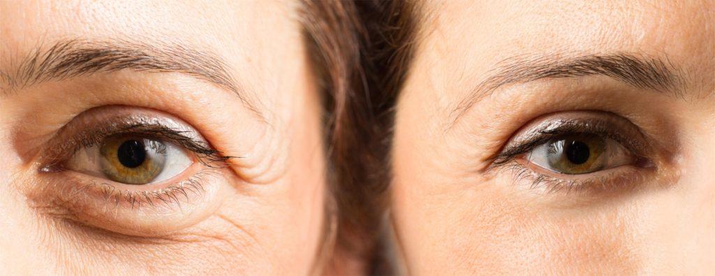 Tear Trough Treatment - Amara Clinic