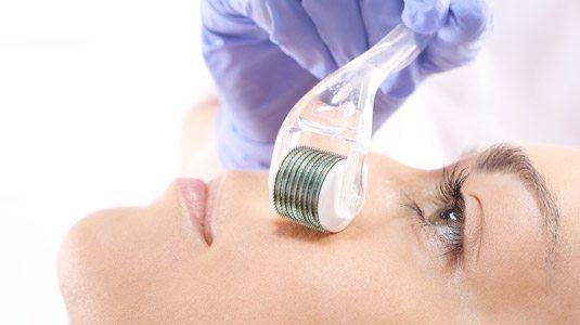 Medical Micro Needling - Skincare Treatments - Dublin