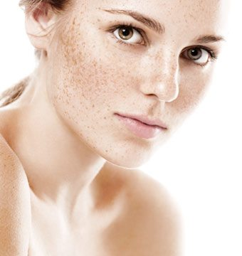 Pigmentation Treatments Dublin - Amara Skincare