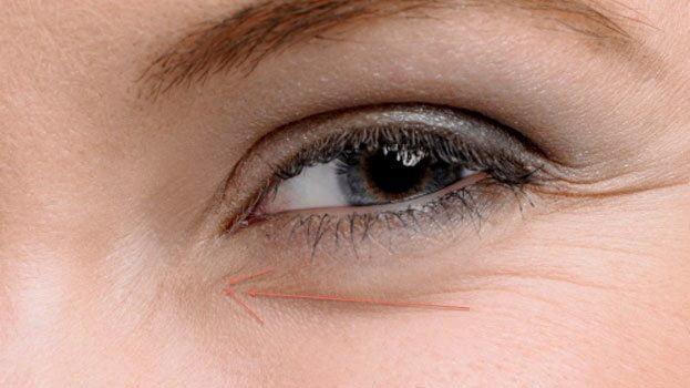 under eye lines