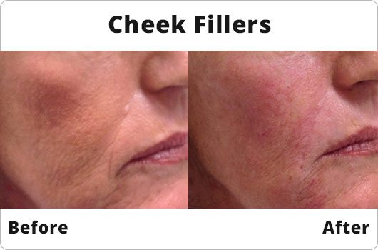 Before and After - Cheek Fillers