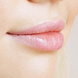 Lips Fillers - Services