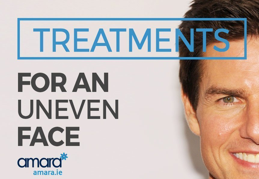 Treatments For An Uneven Face & The Selfie Test!