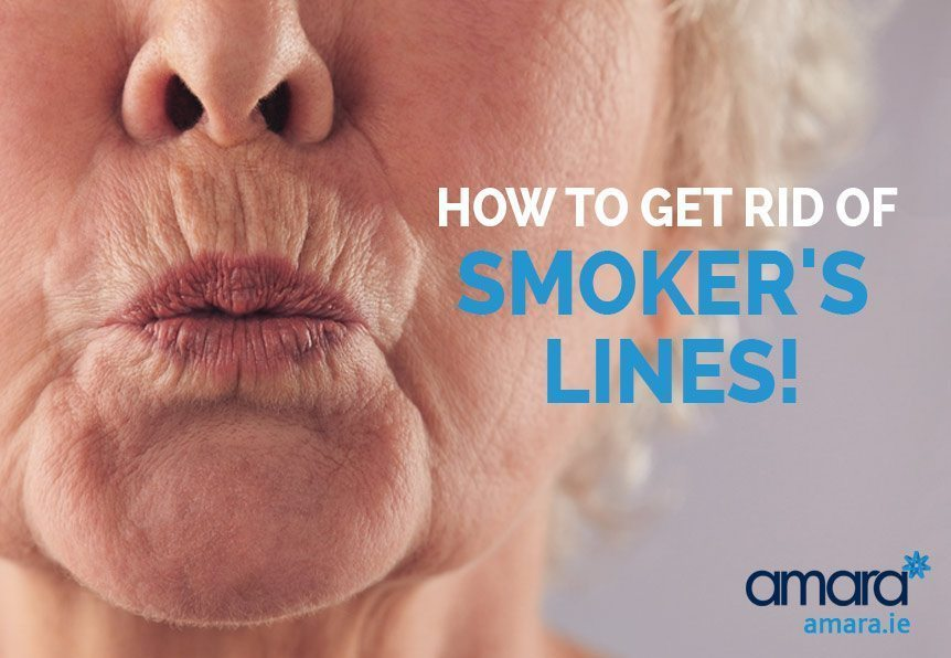 How To Get Rid of Smokers Lines