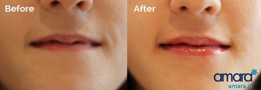 Lip Fillers Plumper Treatment Dublin - Amara