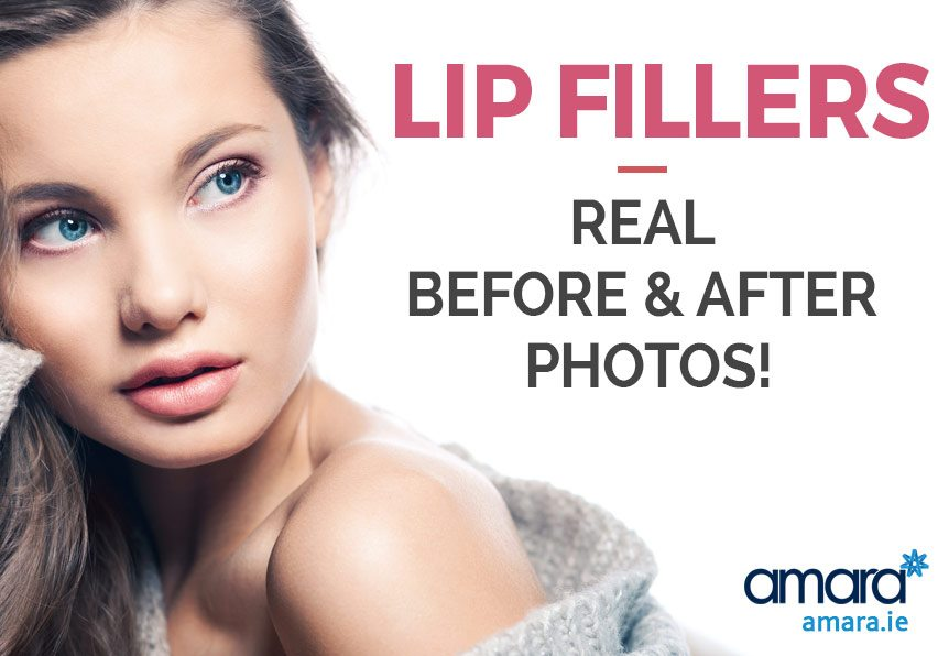 Lip Fillers - Real Before and After Photos - Amara Dublin