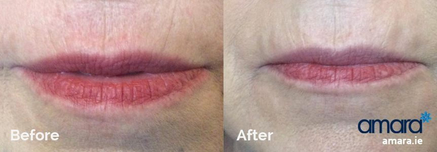 Smokers lines removal treatments Dublin