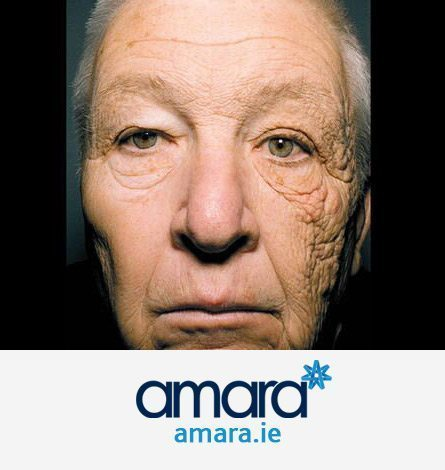 Weather Damaged Skin - Uneven Face - Botox Treatments Dublin
