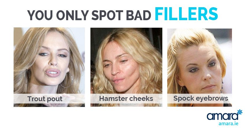 You only spot bad fillers