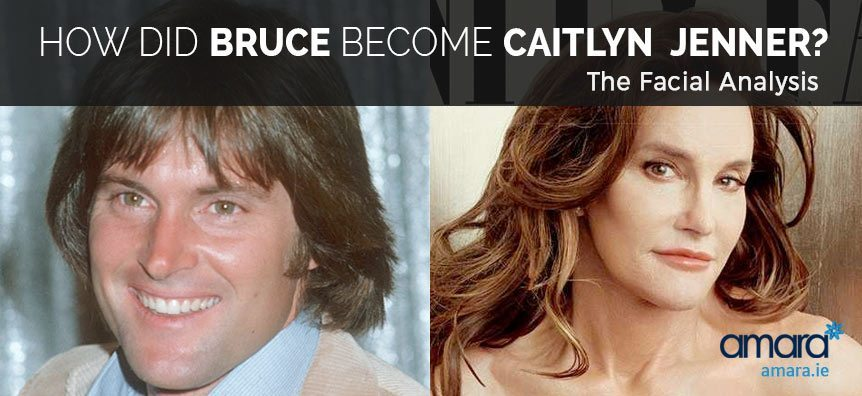 Bruce and Caitlyn Jenner - Before and After Photos