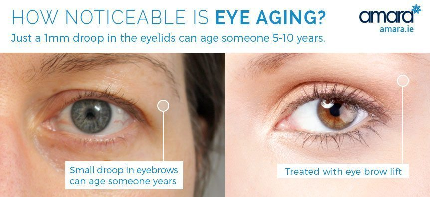 how noticeable is eye aging