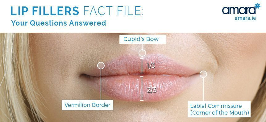 lip fillers treatment areas