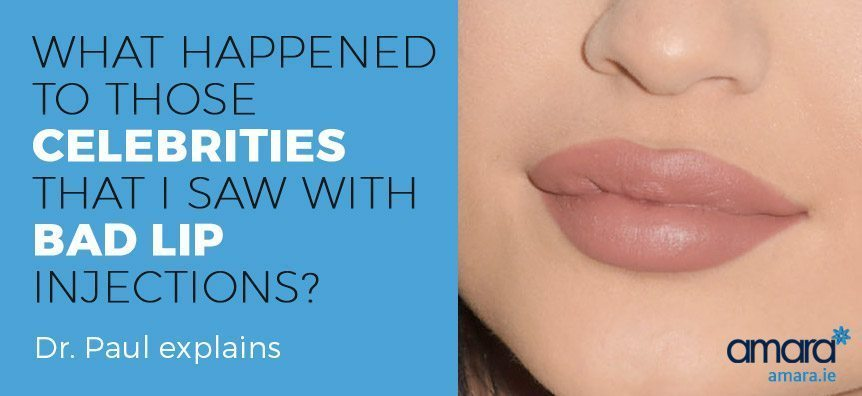 Lip Fillers Fact File: Do Lip Fillers Hurt? | Amara Dublin