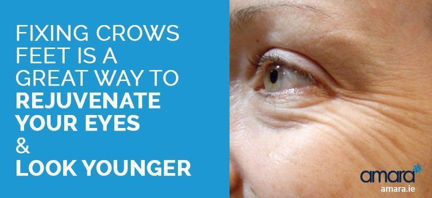 crows feet removal - eye rejuvenation