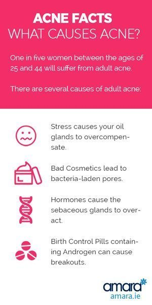 What Causes Acne - Acne Facts