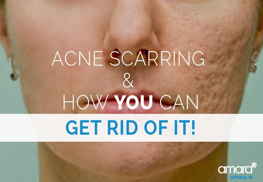 Acne Scarring Treatment Dublin - Amara