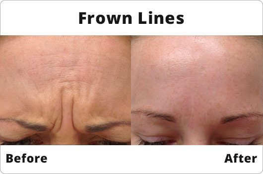 Before and After - Frown Lines - Botox Treatment