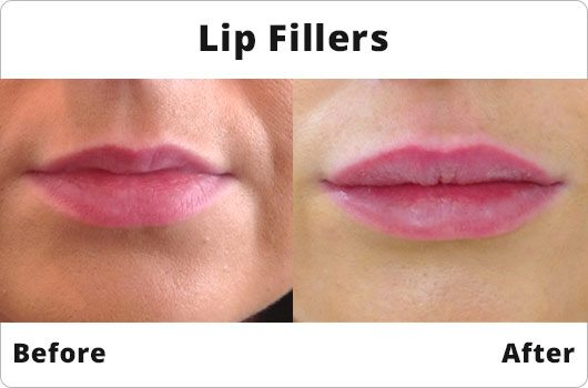 Before and After - Lip Fillers
