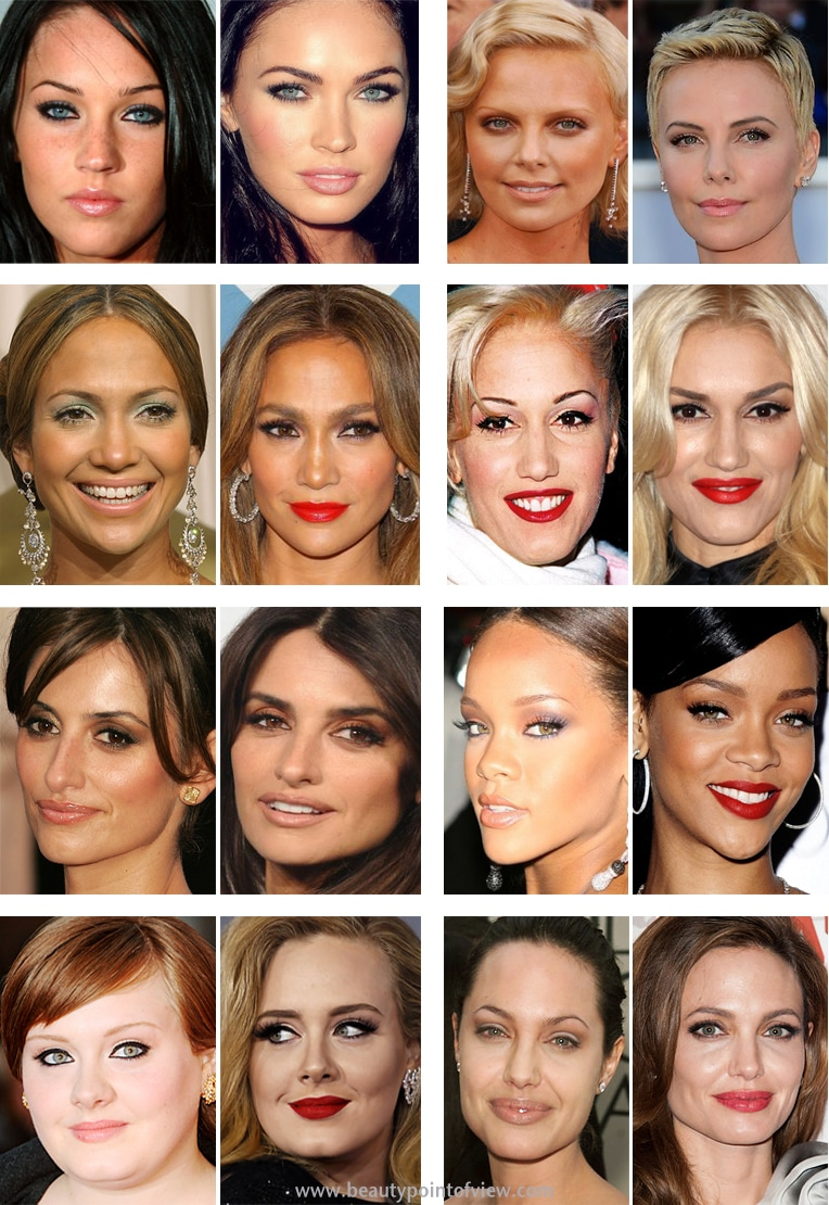 How Important Are Power Brows Amara Clinics