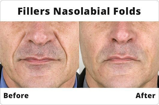 Fillers Nasolabial Folds - Before And After - Amara Skincare Dublin