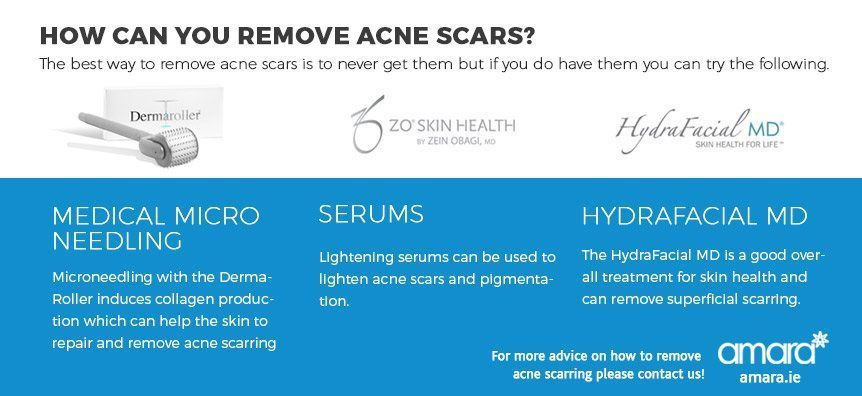 how can you remove acne scars?