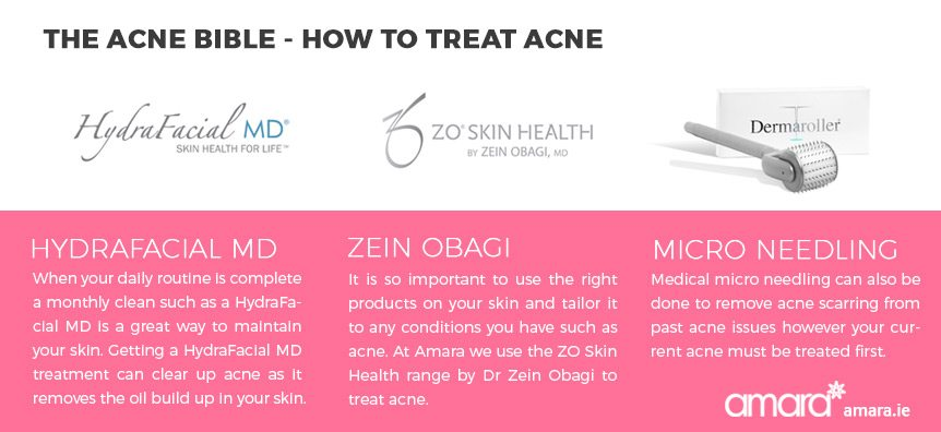 How to treat acne - Acne Treatments Dublin