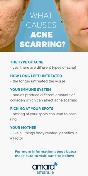 What Causes Acne Scarring?