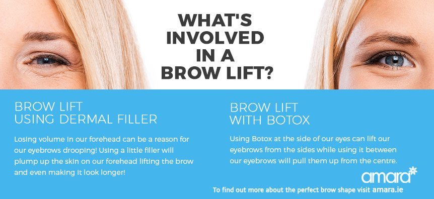 what's involved in a brow lift?