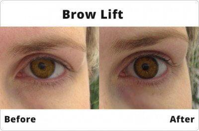 brow lift alt 530 x350