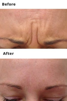 Anti Wrinkle Injection Prices Dublin - Amara Skincare Clinics