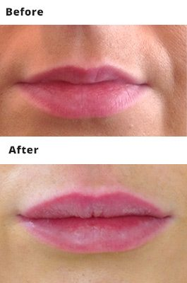 Lip Fillers Prices Dublin - Amara Skincare Clinic
