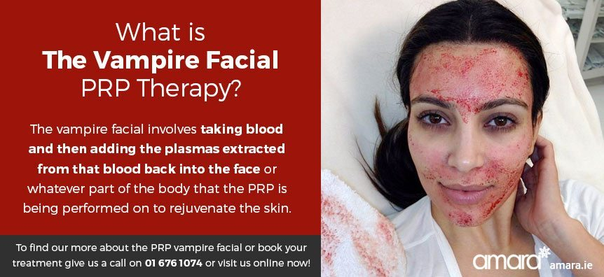 What Is The Vampire Facial?
