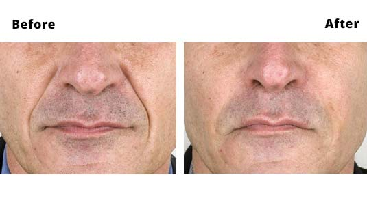 Fillers Nasolabial Folds - Before and After Photos - Amara Clinics