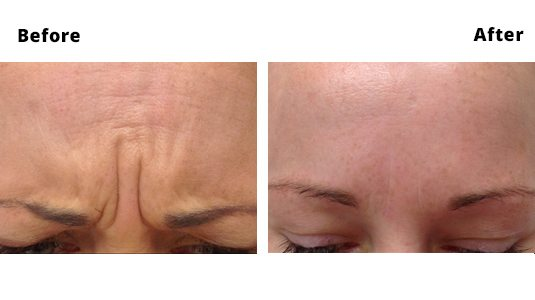 Frown Lines Before and After Photos - Frown Line Treatments Dublin