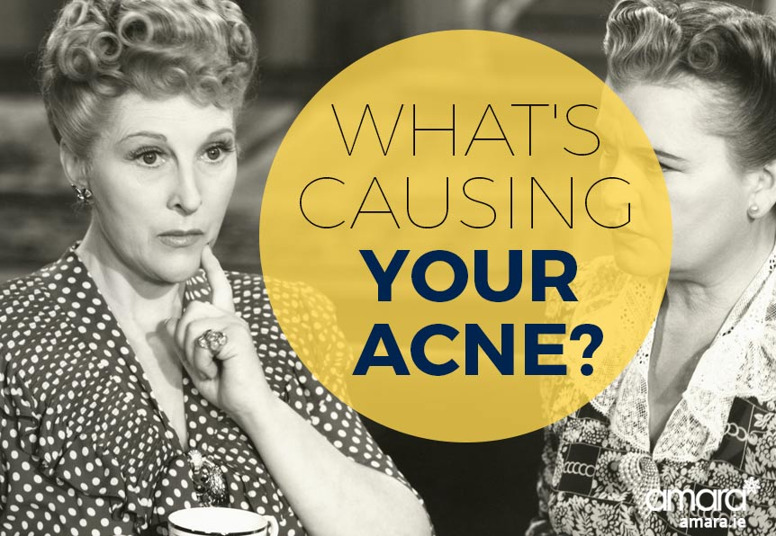 What's causing your acne - Acne treatments