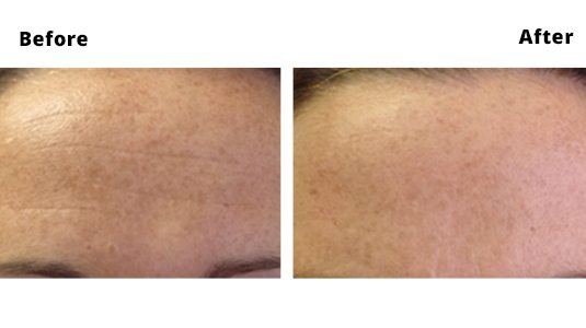 Worry Lines Before and After Photos - Worry Line Treatments Dublin