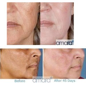 Zo Skin Health - Zein Obagi Skincare Treatments - Before and After