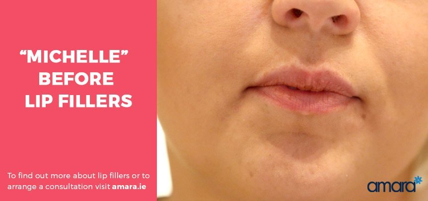 Before Lip Fillers - Amara Clinics Dublin