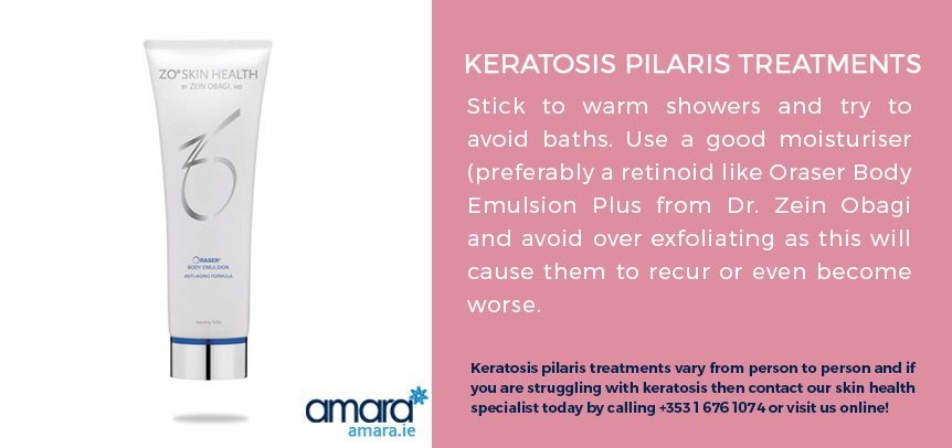 Keratosis Pilaris Treatment - Amara Skincare Clinic Dublin