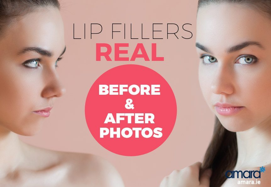 Lip Fillers Real Before and After Photos