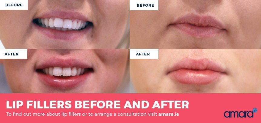 Lip Injections - Real Before and After Photos - Amara Dublin