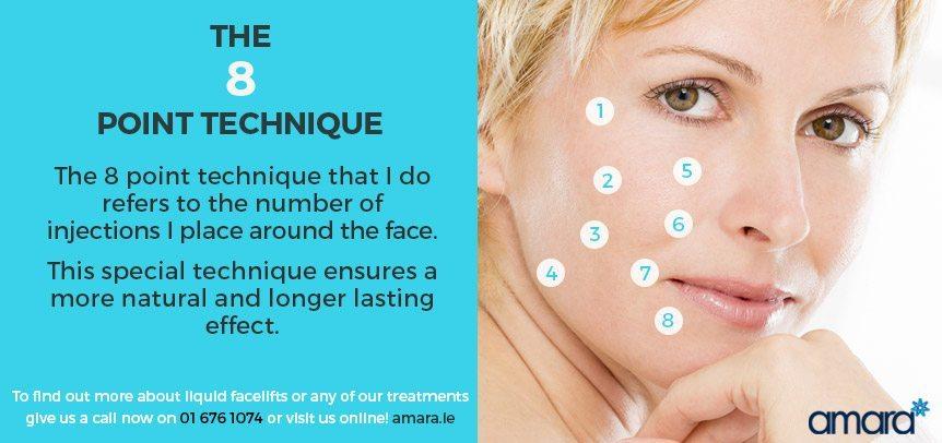 The 8 Point Technique - Liquid Facelift Dublin