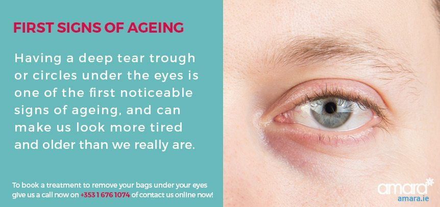 First Signs of Ageing - Bages Under The Eyes