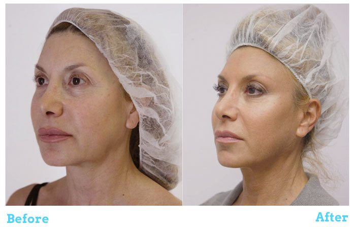 Silhouette Soft Before & After Woman
