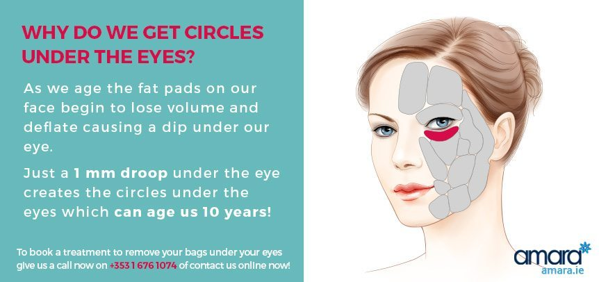 Why do we get circles under the eyes - Amara Skincare Clinic Dublin